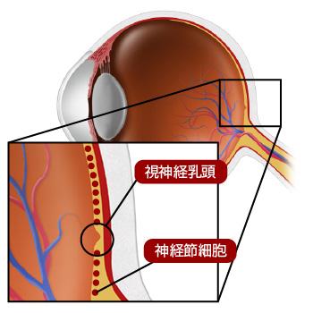 神経 欠損 層 網膜 線維
